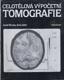 Celotělová výpočetní tomografie
